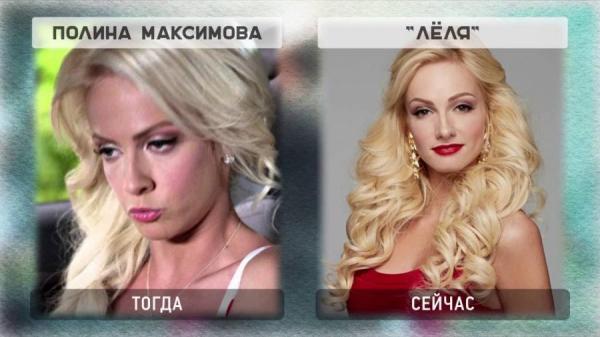 Полина Максимова до и после пластики