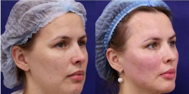 Реальные работы Лианы Колесовой «до и после»