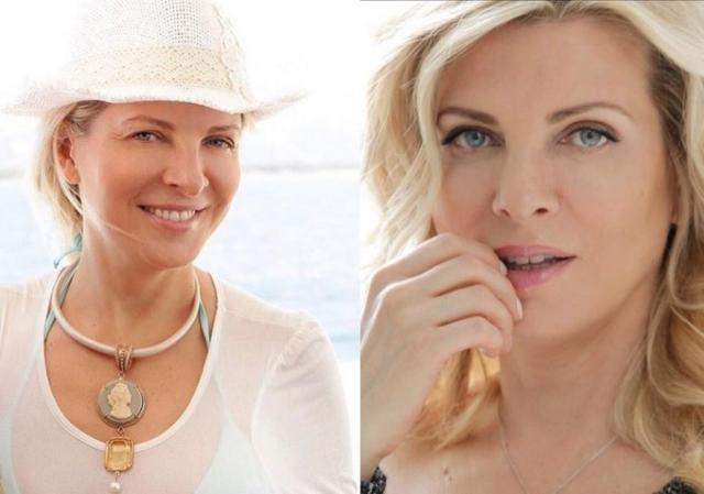Эмма Малинина до и после пластики