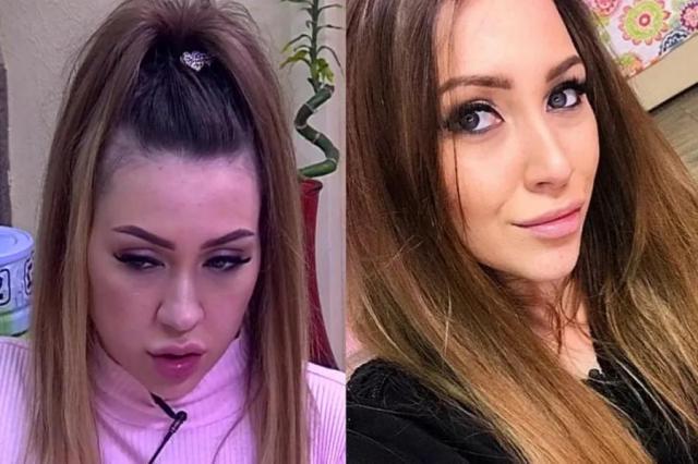 Алена Рапунцель до и после пластики