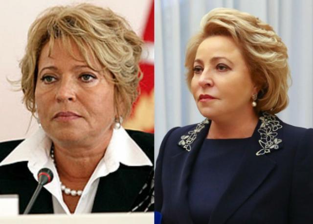 Валентина Матвиенко до и после пластики
