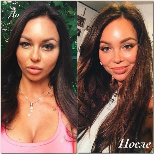 Анастасия Лисова до и после пластики