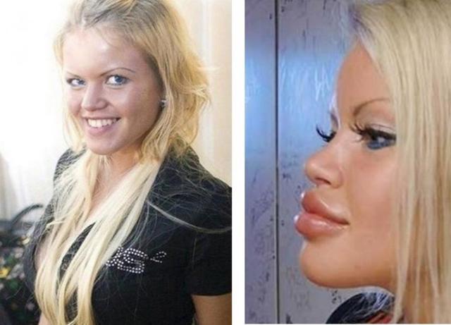 Олеся Малибу до и после пластики