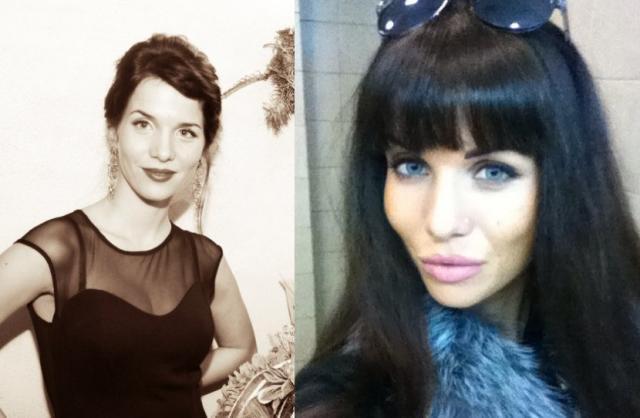 Александра Гозиас до и после пластики