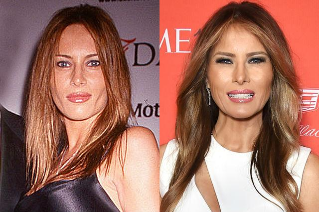Мелания Трамп до и после пластики
