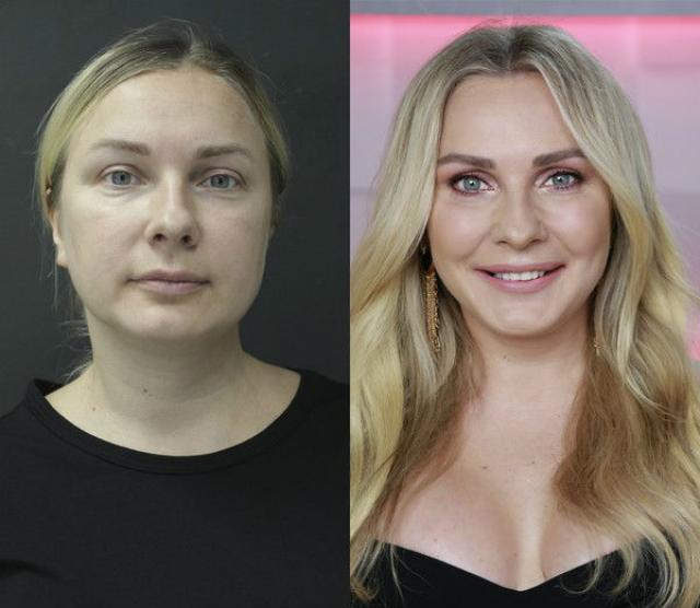 Анастасия Дашко до и после пластики